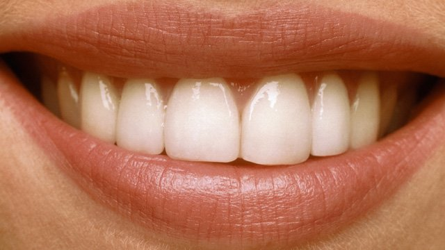 Mituri despre tratarea dintilor